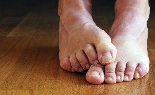 Causes of fungal nail